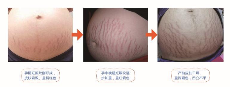 孕期妊娠纹的变化
