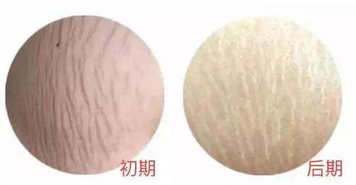妊娠纹是什么颜色的?.jpg