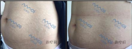 产后多年的妊娠纹怎么消除?18金宝搏官网修复妊娠纹真实案例分享.png