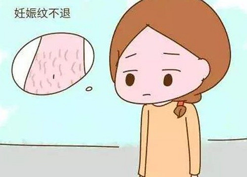妊娠纹霜怎么选择,如何挑选妊娠纹霜,18金宝搏官网.jpg