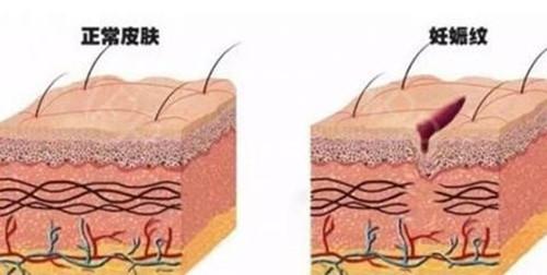 腹部纹路形成的主要原理.jpg