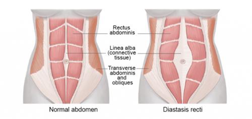 腹直肌分离怎么办,18金宝搏官网产后康复诊所专业修复妊娠纹.png