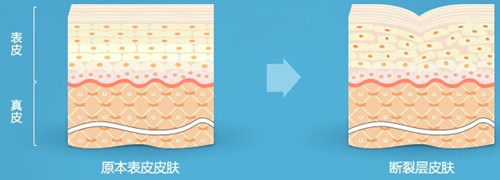 妊娠纹形成的原因,去妊娠纹,修复妊娠纹产品哪款好.jpg